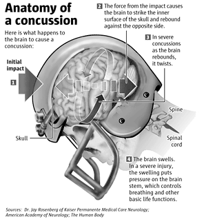 The Rate Of A Concussion